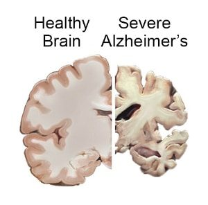brain slices alzheimers